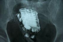 Un détenu trahi par la sonnerie du portable dissimulé dans son corps !