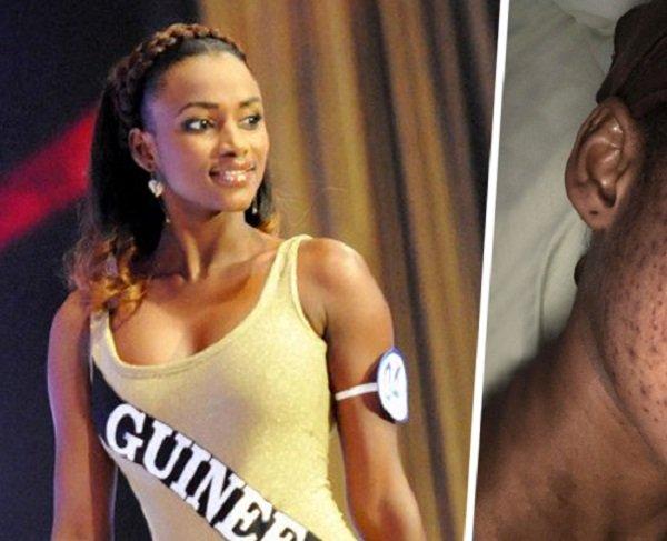 Victime d'une réaction allergique causée par des produits de beauté, la Miss Cedeao 2012 méconnaissable (Photos)