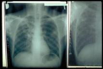 Tuberculose: 12810 cas enregistrés en 2012, soit une augmentation de 1200 cas