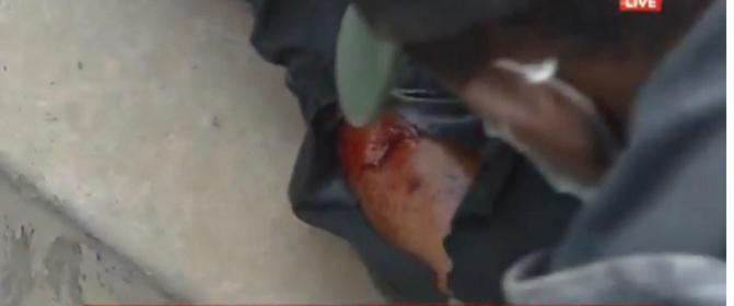 Audition de Ousmane Sonko: Un cadreur de Ouest Tv blessé par balle