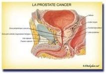 Journée de consultations gratuites sur le cancer de la prostate