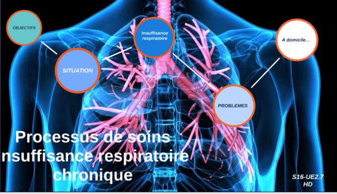 Covid-19 / Insuffisance respiratoire chronique: Ces personnes atteintes, invitées à se faire vacciner