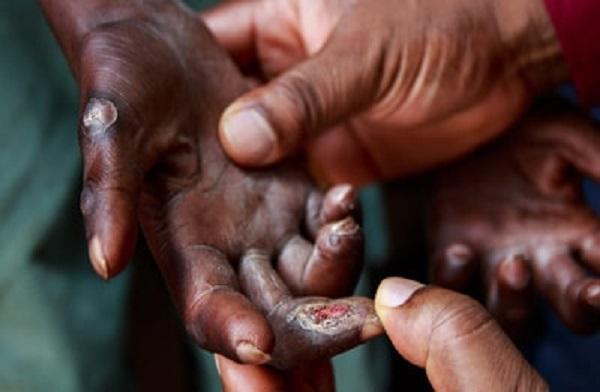 La lèpre au Sénégal: Près de 200 nouveaux cas recensés en 2020