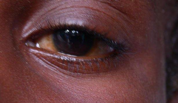 Covid-19 et épidémie de conjonctivite: Les éclairages du Pr. Pape Ndiaye, ophtalmologue