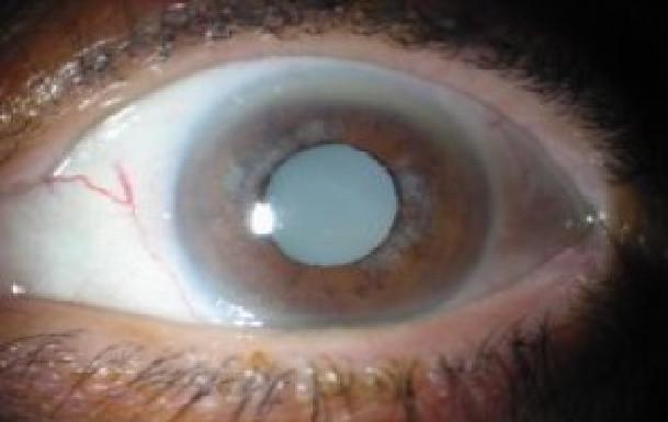 Kaolack : 300 personnes âgées seront opérées de la cataracte gratuitement