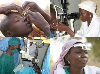 Santé oculaire: 50 000 cas de cataracte en attente de chirurgie.