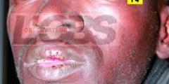 Première victime de la loi sur la baisse du loyer : Alpha Ndiaye se fait fendre les lèvres par son logeur
