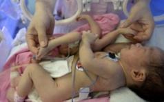 (Photo) Un bébé naît avec quatre jambes et quatre bras. Regardez