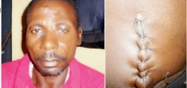 Nigéria : Il tue sa deuxième femme pour lui avoir sciemment transmis le Sida