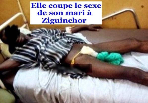 Ziguinchor : Une jeune mariée sectionne le sexe de son époux