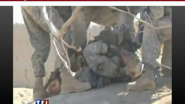 Un soldat américain perd ses jambes devant la caméra de TF1