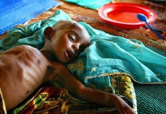 Tambacounda : La malnutrition, un mal bien présent