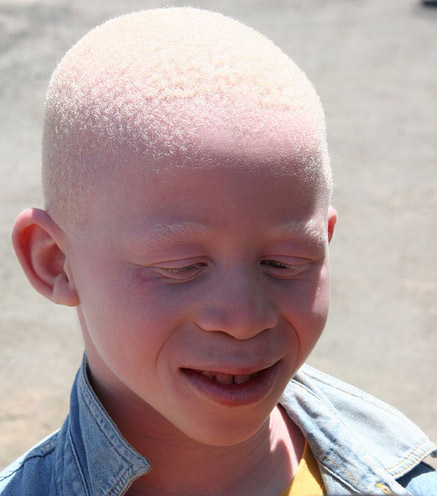 Discrimination et marginalisation Iliées aux fausses croyances: La dure condition d'être albinos à Tambacounda