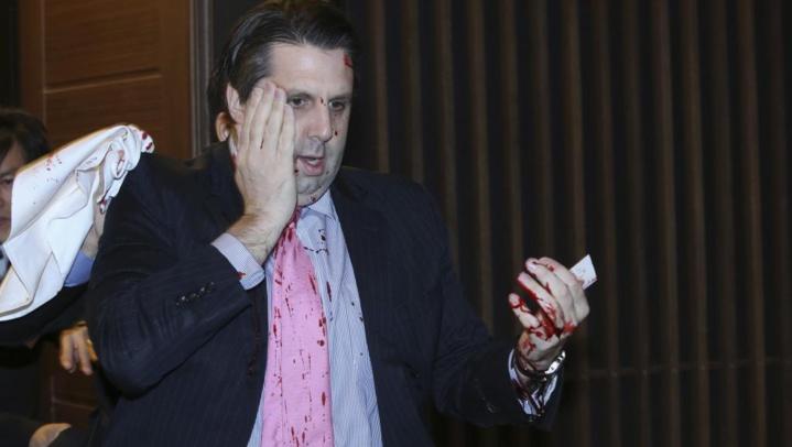 L'ambassadeur américain à Séoul blessé dans une attaque au couteau