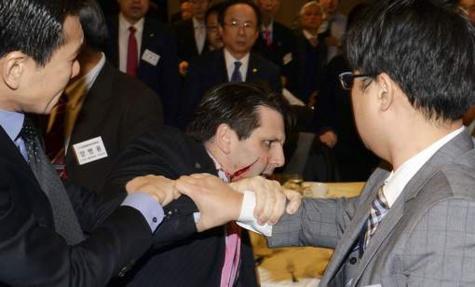 Attaque de l'ambassadeur US en Corée du Sud, il l'a bien mérité, selon Pyongyang