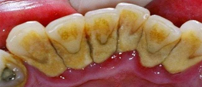Traitement naturel de la parodontite - Maladie du buis traitement naturel ...