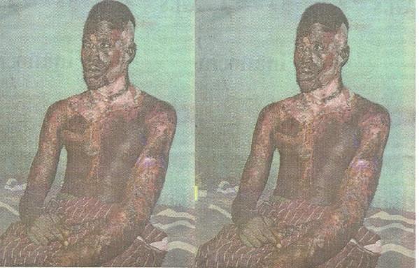 Tragique mésaventure pour Baye Diop : Pour une banale histoire de cigarette, il a été brûlé à l'acide sulfurique…