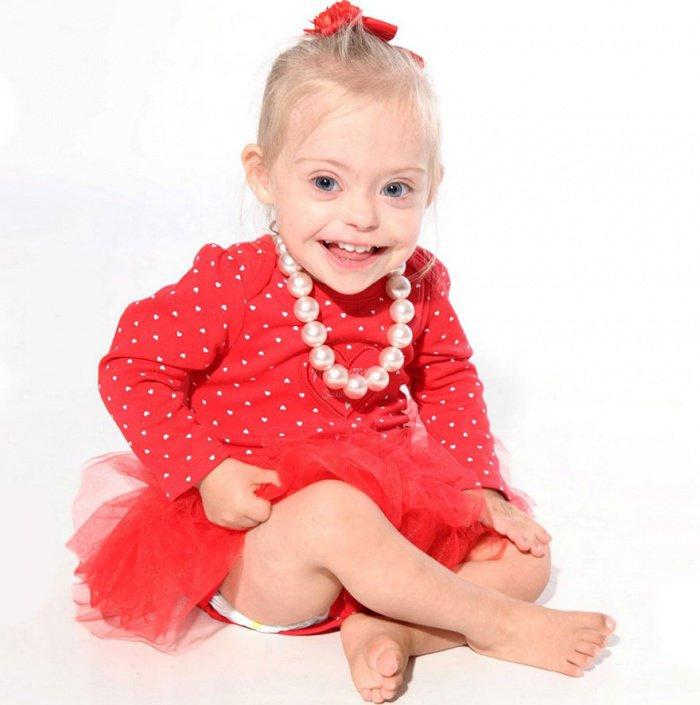 Cette petite fille trisomique, d'à peine 2 ans, est devenue mannequin grâce à ses grands yeux bleus... Elle est magnifique !
