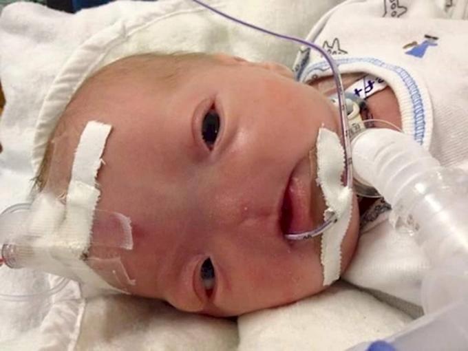 Eli, le bébé qui est né sans nez, il continue de se battre pour vivre (photos)