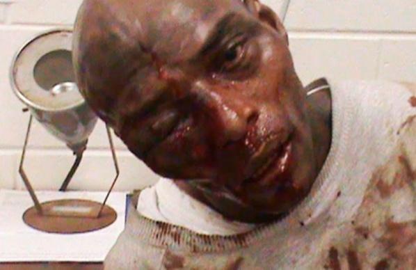 Italie : Accusé de pédophilie, un Sénégalais battu à sang, ses parties génitales défoncées