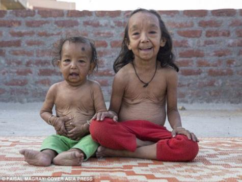 L'histoire de ces deux jeunes enfants Indiens ressemblant étrangement à « Benjamin Button » va vous bouleverser