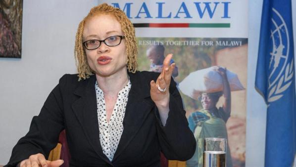 La Nigériane Ikponwosa Ero, experte indépendante de l'ONU sur la question des personnes atteintes d'albinisme et albinos elle-même, a mené une mission de 12 jours au Malawi