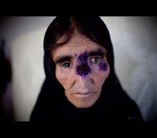 """""""Aleppo evil"""": la maladie qui ravage la Syrie et qui pourrait débarquer en Europe"""