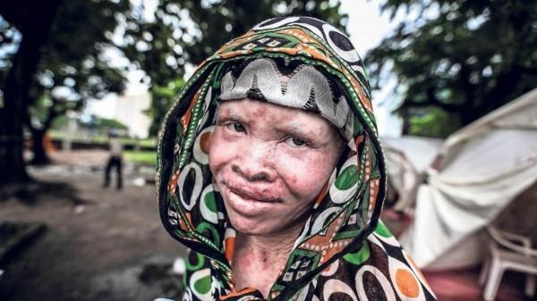 Guinée : le Président Alpha Condé préoccupé par la vulnérabilité des albinos