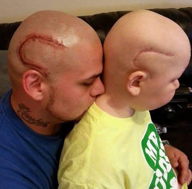 Il se fait tatouer la même cicatrice que son fils atteint d'un cancer pour le soutenir dans cette épreuve... Magnifique !