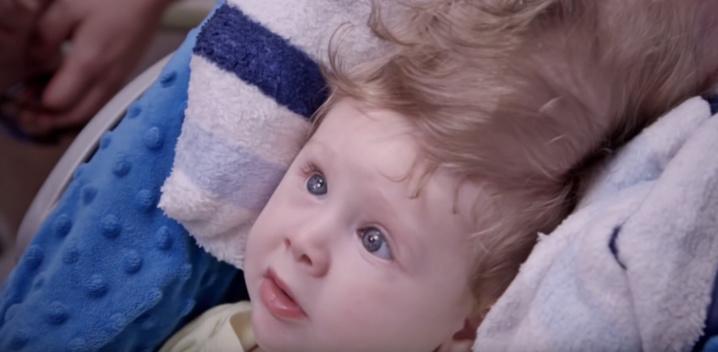 Un bébé nait avec le cerveau au-dessus du crâne
