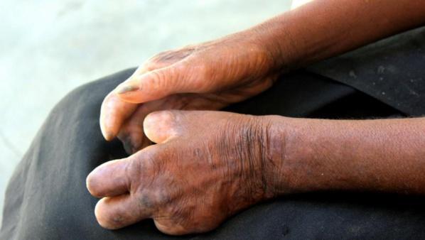 Alerte à Touba : La lèpre est de retour