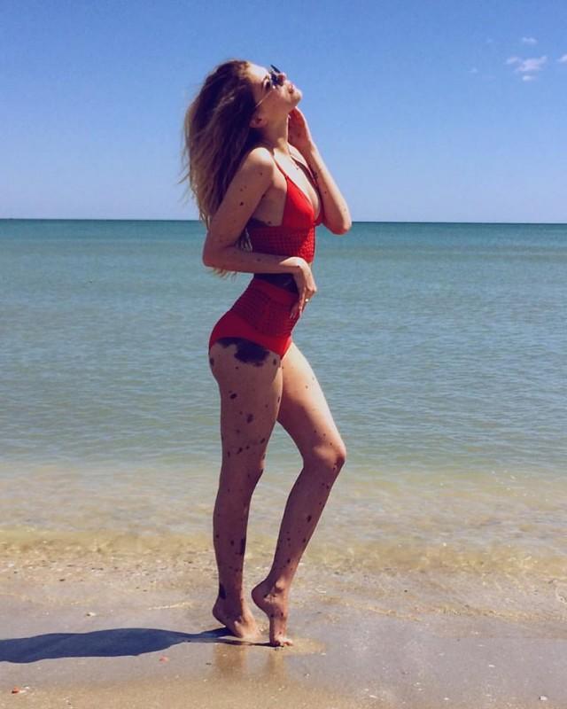 Une Ukrainienne avec une anomalie génétique devient une star d'Instagram