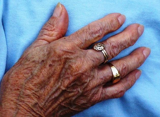 Le persil des taches de pigment sur la personne les rappels