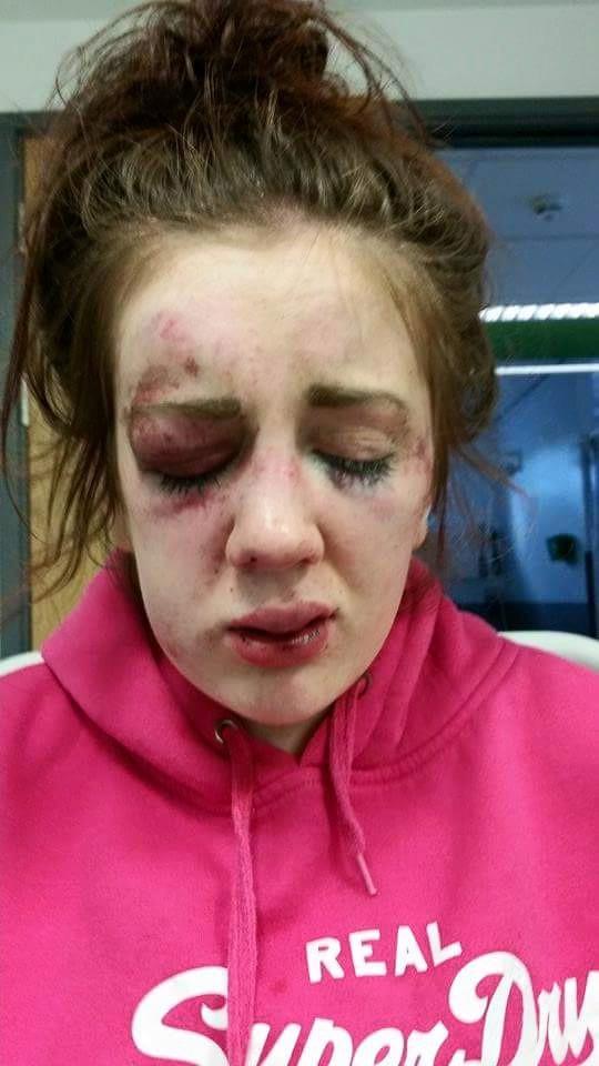 Agressée dans une soirée dansante : Tia Jade Edwards sérieusement défigurée