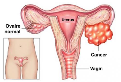 Vous doublez votre risque de cancer des ovaires en faisant ceci