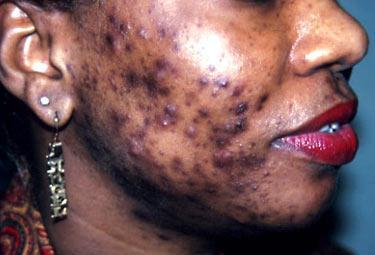 La dépigmentation, une mode chez les femmes sénéglaises