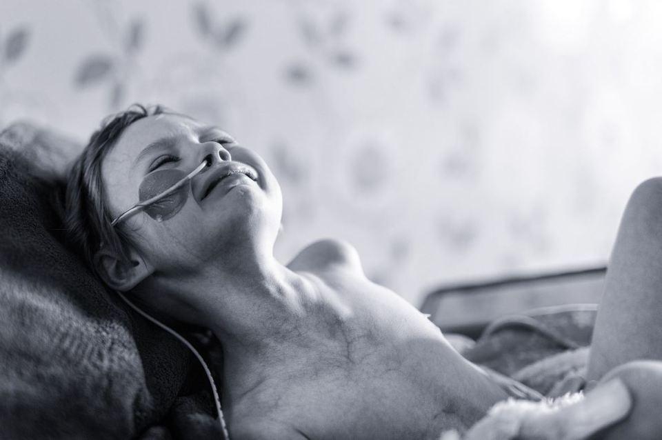 Jessica Whelan, une fille de quatre atteinte de cancer, son père a publié ses photos pour sensibiliser contre cette maladie.