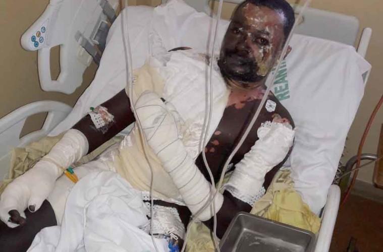 Ébouillanté par sa femme: Babacar Mbaye entre la vie et la mort (images)
