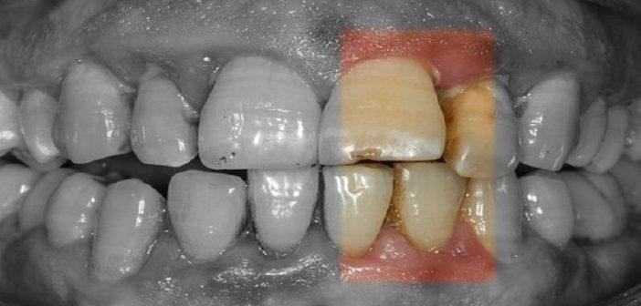 Santé: Découvrez la gingivite la maladie qui détruit silencieusement la bouche