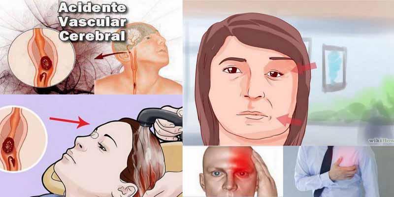 10 symptômes inquiétants qui indiquent qu'un AVC est proche !