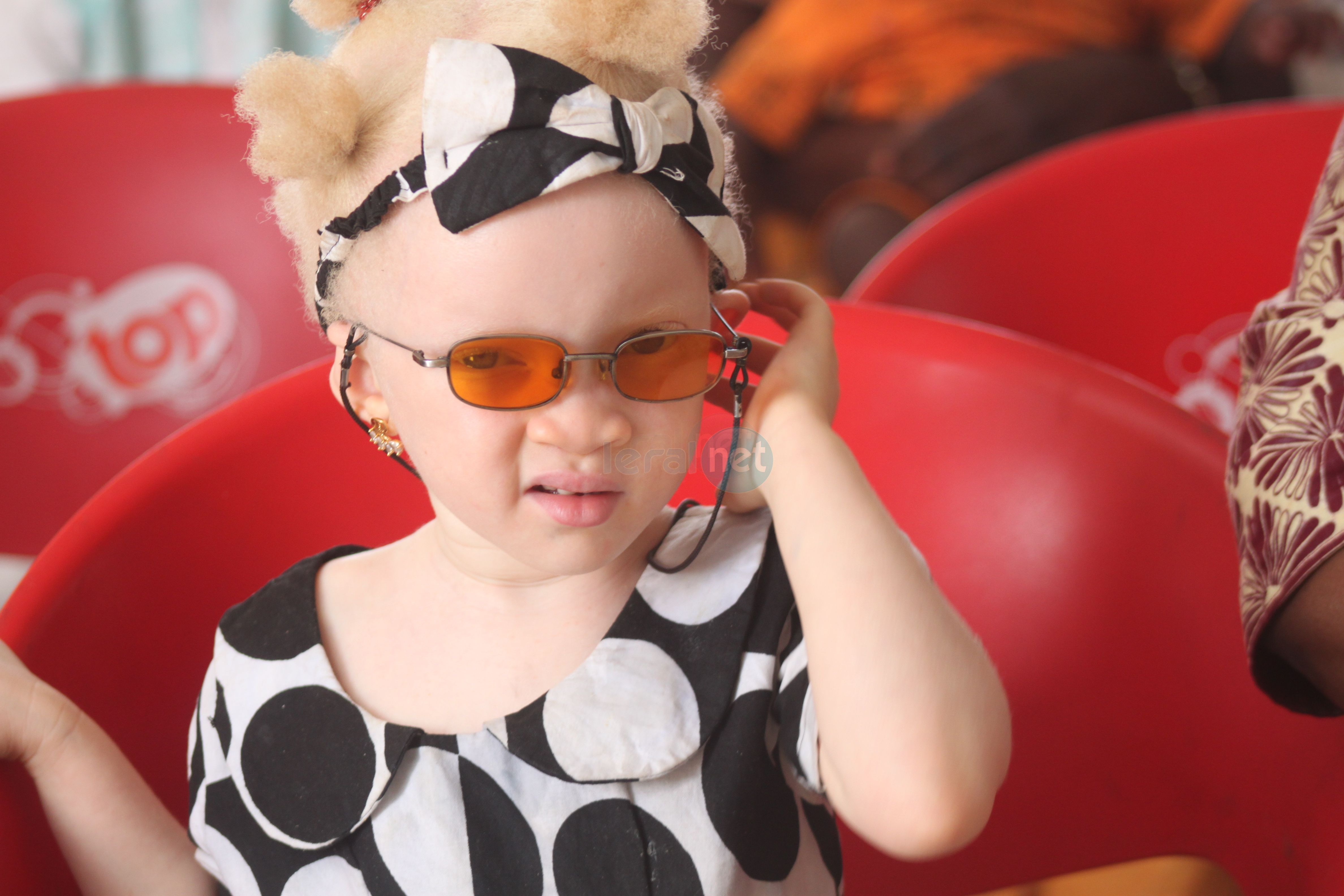 Les Petites Gouttes ont fêté l'anniversaire du projet Albinisme : Un An sous le Parasol, 2e édition