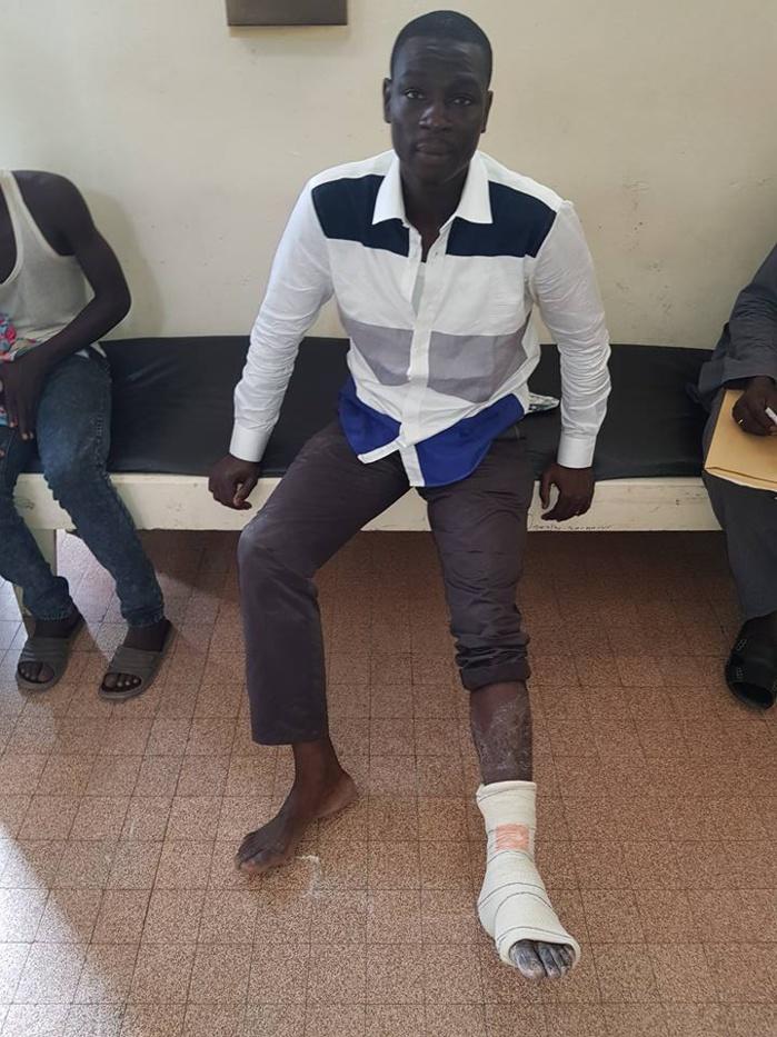 Assemblée nationale: Gallo Tall du PDS, sort en boitillant et accuse la police
