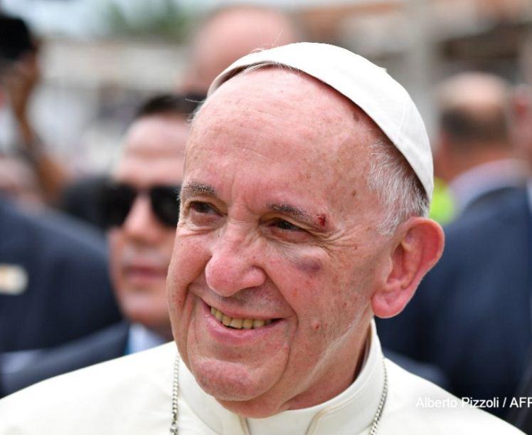 Le pape se blesse légèrement au visage après un freinage brutal de sa papamobile