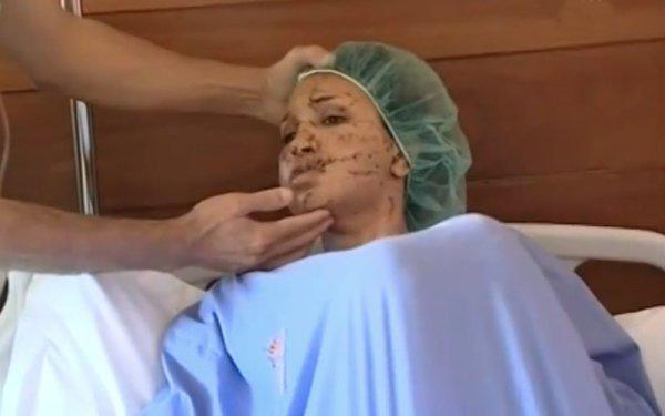 Coups et blessures volontaires (Cbv), ayant entrainé une incapacité temporaire de travail (Itt) de 21 jours : Binta Mboup sectionne le visage de sa tante à l'aide de deux lames