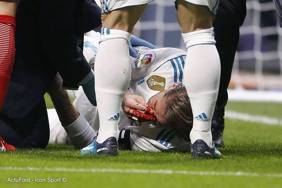 Fracture du nez pour Sergio Ramos, selon le communiqué médical du club