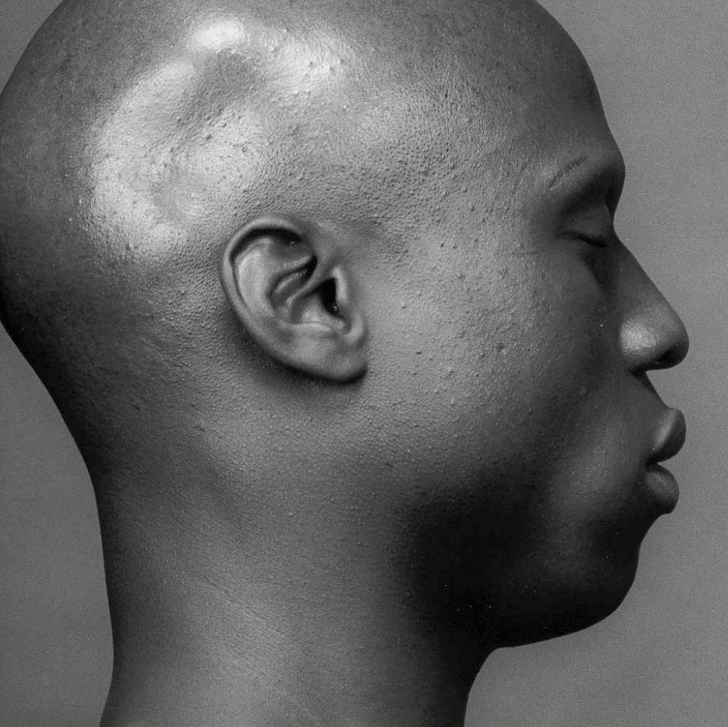 La dépigmentation volontaire de la peau concerne aussi les hommes