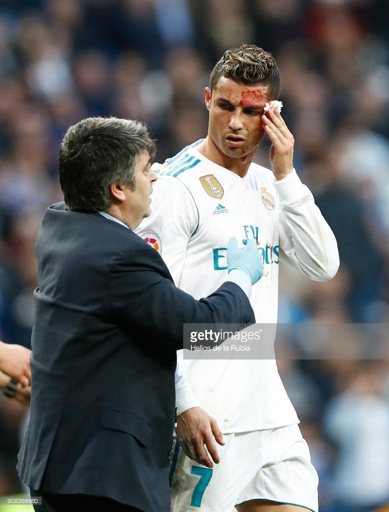 16 photos : blessé, Cristiano Ronaldo demande un téléphone au membre du staff médical