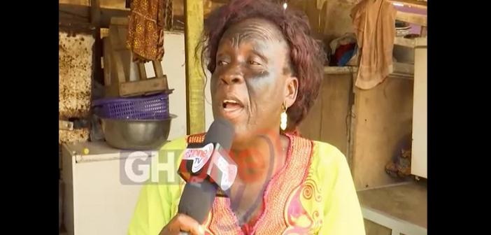 Ghana: Elle perd la vue dans ses tentatives de se blanchir la peau