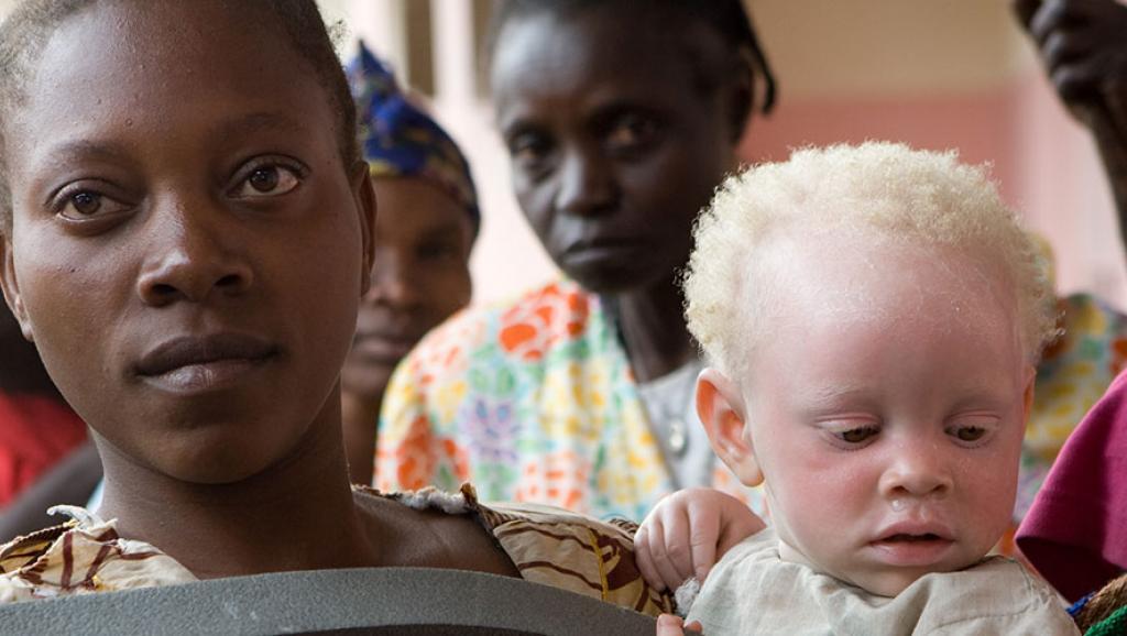 Afrique: «Les albinos sont considérés comme des êtres dotés de pouvoirs»