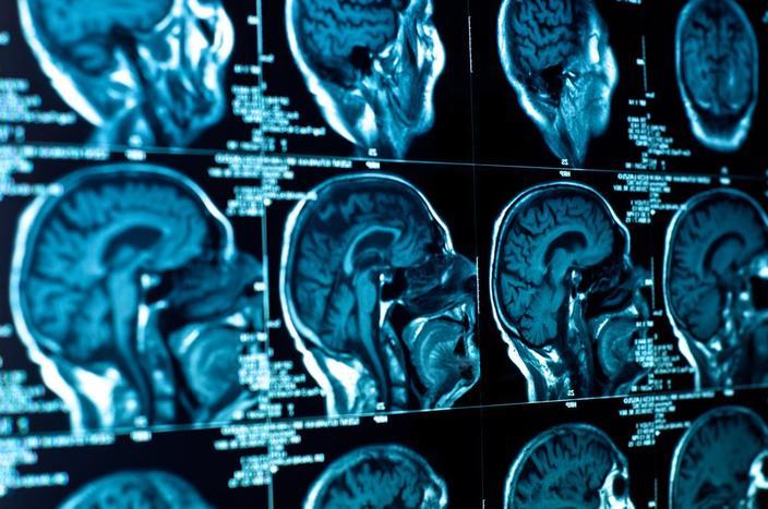 Des radiographies d'un cerveau (image d'illustration).Shutterstock.com